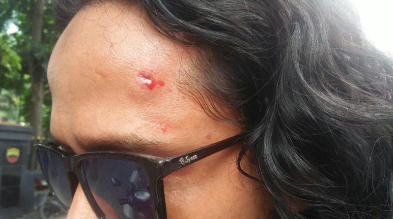 wartawan korban lemparan batu