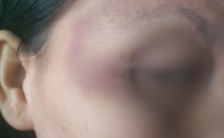 Medanoke.com-korban kekerasan wanita